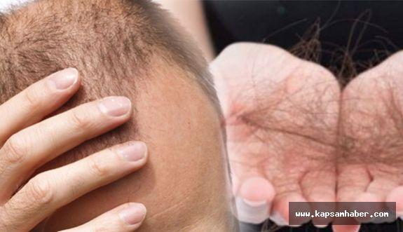 Kadınlarda Demir Eksikliği Saç Döküyor