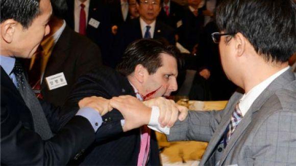 ABD Büyükelçisi Lippert'e Usturalı Saldırı!