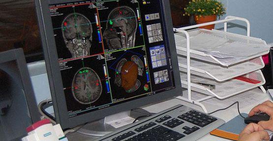 Alzheimer tedavisinde yeni umut...