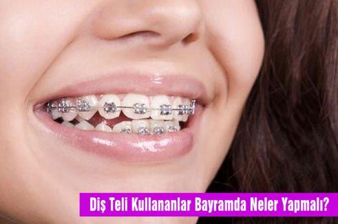 Diş Teli Kullananlar Bayramda Neler Yapmalı?