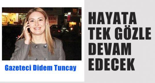 Gazeteci Didem'in Tek Gözü Kurtarılamadı