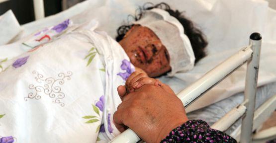Irak'ta şiddet çocukları da vurdu
