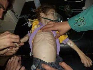 Şam'da Çocuklar Açlıktan Ölüyor...