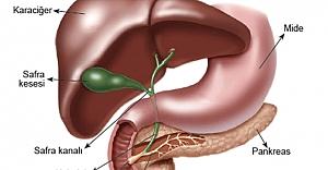 Pankreas kanseri belirtileri