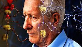 Erken gelişen Alzheimer'a dikkat!