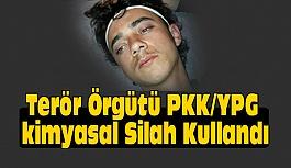 Terör Örgütü PKK/YPG kimyasal Silah Kullandı