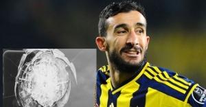 Fenerbahçeli Topal'a silahlı seldırı