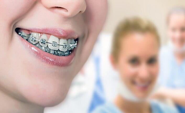 Ortodonti Tedavisi Ne Kadar Sürmektedir
